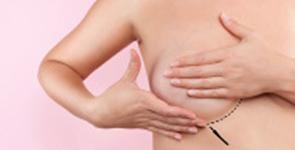 reduccion-mamaria-pechos-clinica-patologia-mamaria-doctora-morales-valencia-1