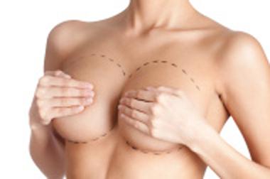 Aumento mamario: resuelve tus dudas