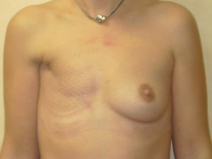 reconstruccion-mamaria-diferida postmastectomia-01