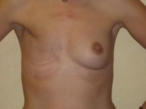 reconstruccion-mamaria-diferida postmastectomia-02