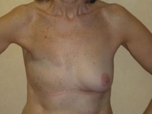 reconstruccion-mamaria-diferida-protesis-anatomicas-clinica-morales-01