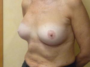 reconstruccion-mamaria-diferida-protesis-anatomicas-clinica-morales-02