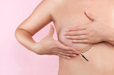 reduccion-mamaria-pechos-clinica-patologia-mamaria-doctora-morales-valencia