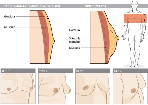 ¿Qué es la Ginecomastia?